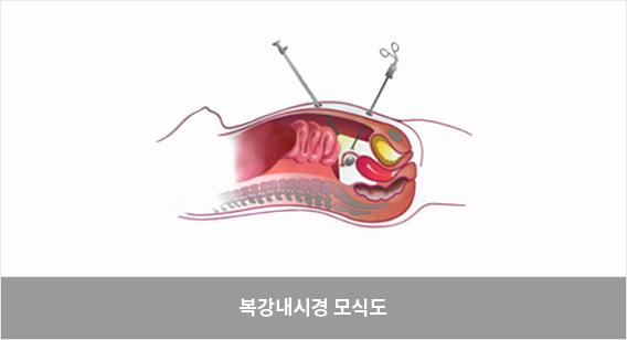 임신성당뇨
